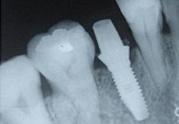 implant_03
